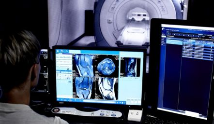 MRI Images on Computer Screen