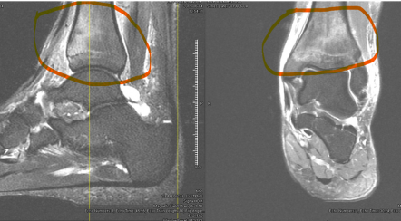 Ankle fracture MRI