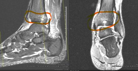 Osteochondral lesion