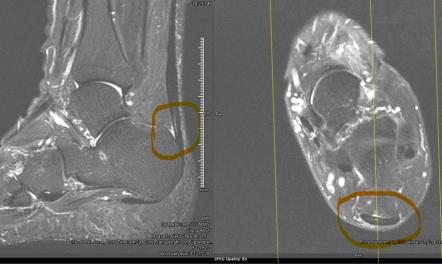 tendoachilles tendinopathy